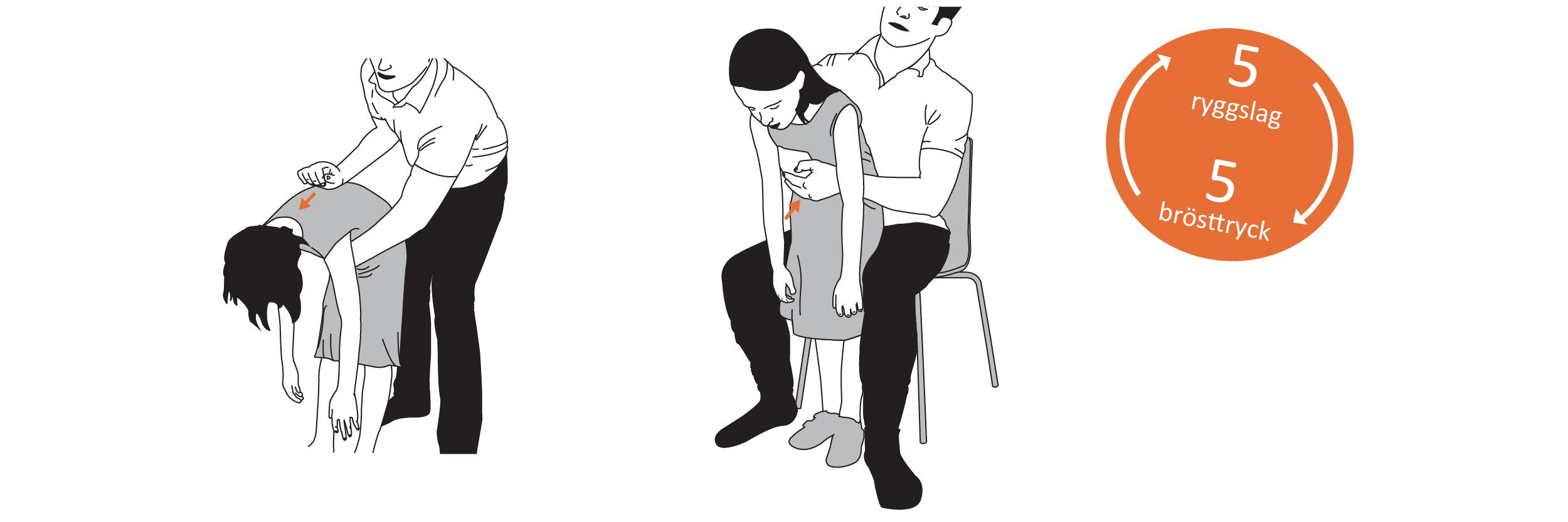 Luftvägsstopp barn heimlich-manövern | Eldupphör